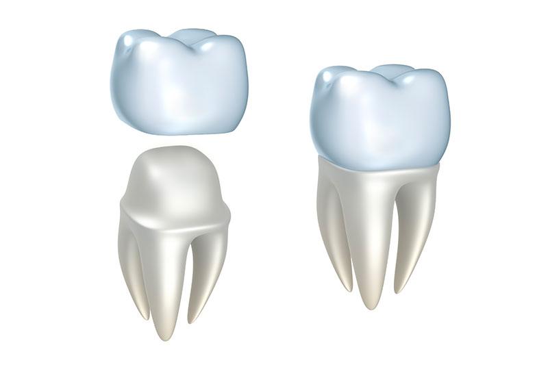 Dental Crowns Garden Grove, Orange County Cosmetic & General Dentist