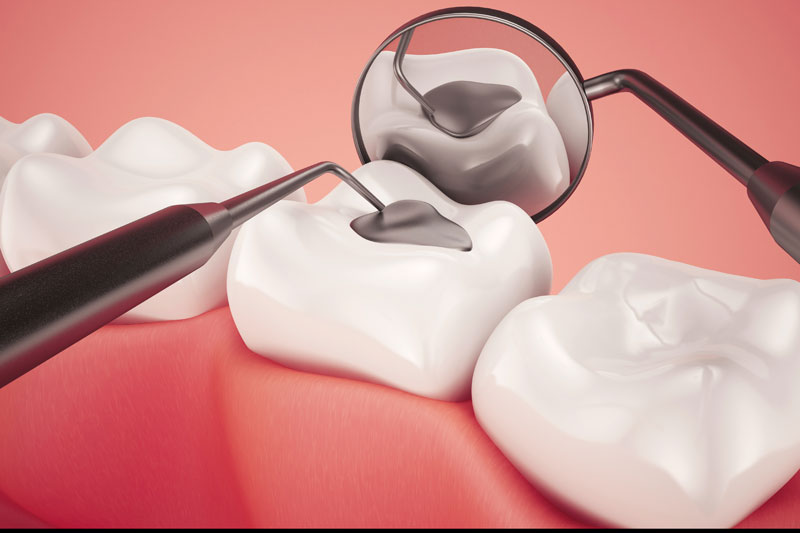 Tooth Fillings Garden Grove | Orange County Cosmetic & General Dentist