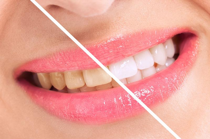 Teeth Whitening in Garden Grove, CA | Orange County Cosmetic Dentist